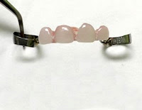 Pediatric Dental Partial appliance